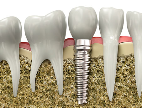 Dental Implant San Antonio
