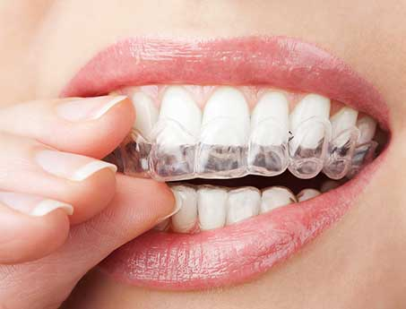 Braces, Orthodontic Treatment, Invisalign San Antonio