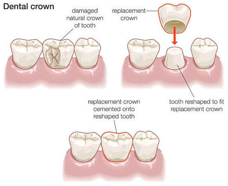 How Much Is A Crown >> Crowns Caps And Bridges Dr Parsi Pediatric And Family Dentistry