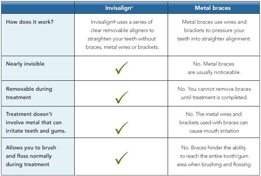 Invisalign vs Metal Bracess