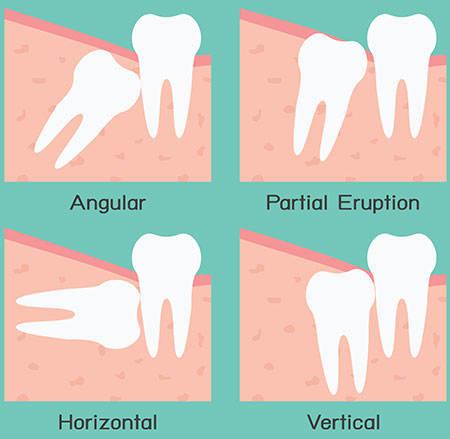 Wisdom Teeth Extraction San Antonio